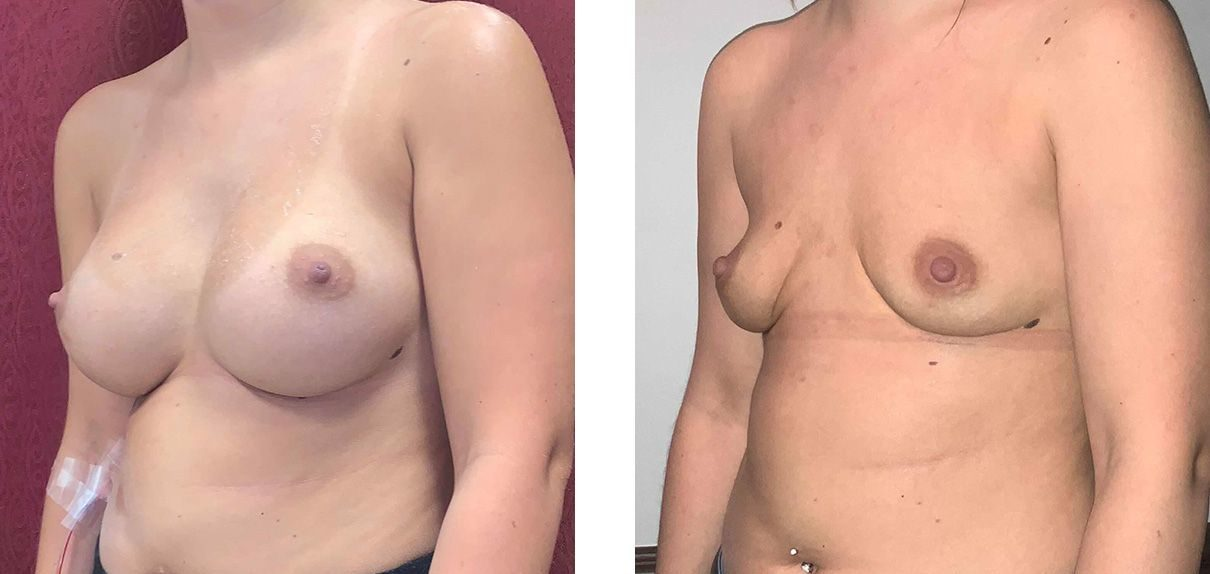 Cosmetic Surgery Tulsa | Explant - Patient 1 - Oblique 2