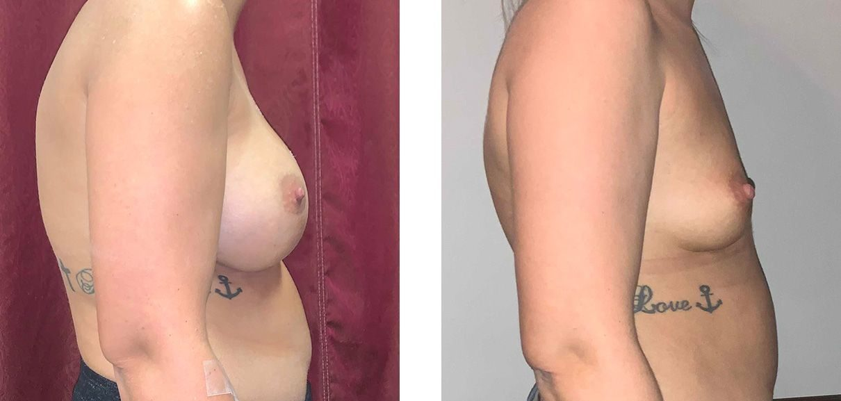 Cosmetic Surgery Tulsa | Explant - Patient 1 - Side 1