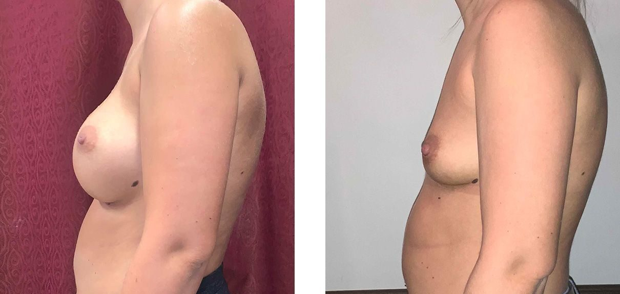 Cosmetic Surgery Tulsa   Explant - Patient 1 - Side 2