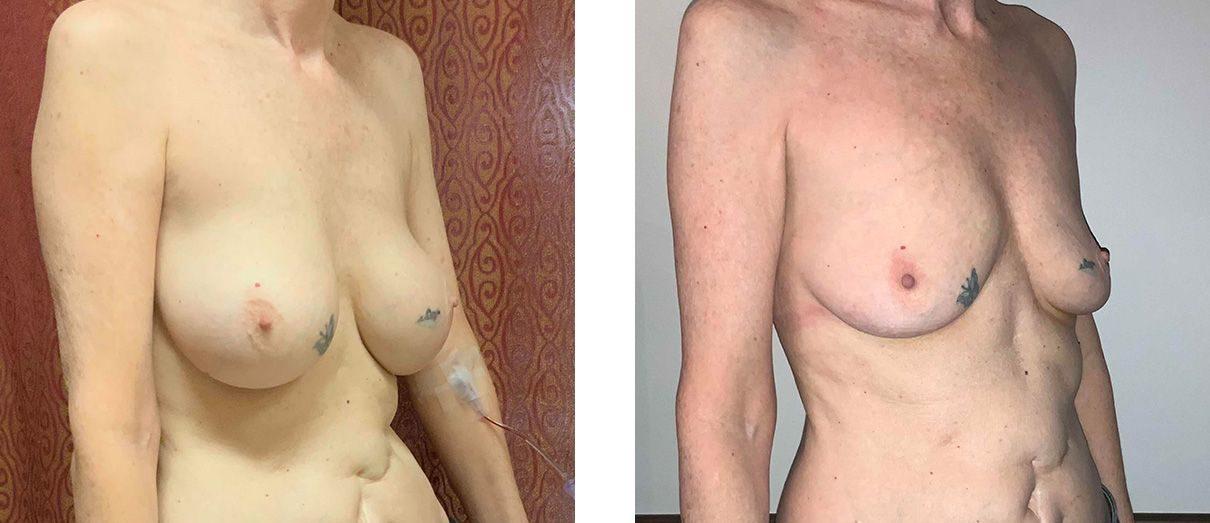 Cosmetic Surgery Tulsa | Explant - Patient 2 - Oblique 1