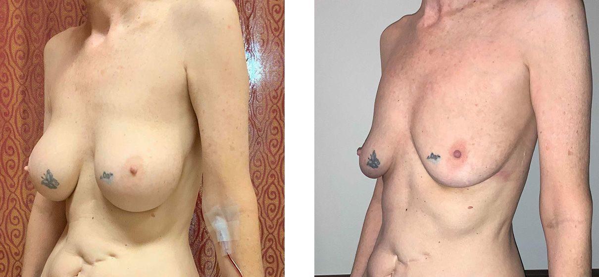 Cosmetic Surgery Tulsa | Explant - Patient 2 - Oblique 2