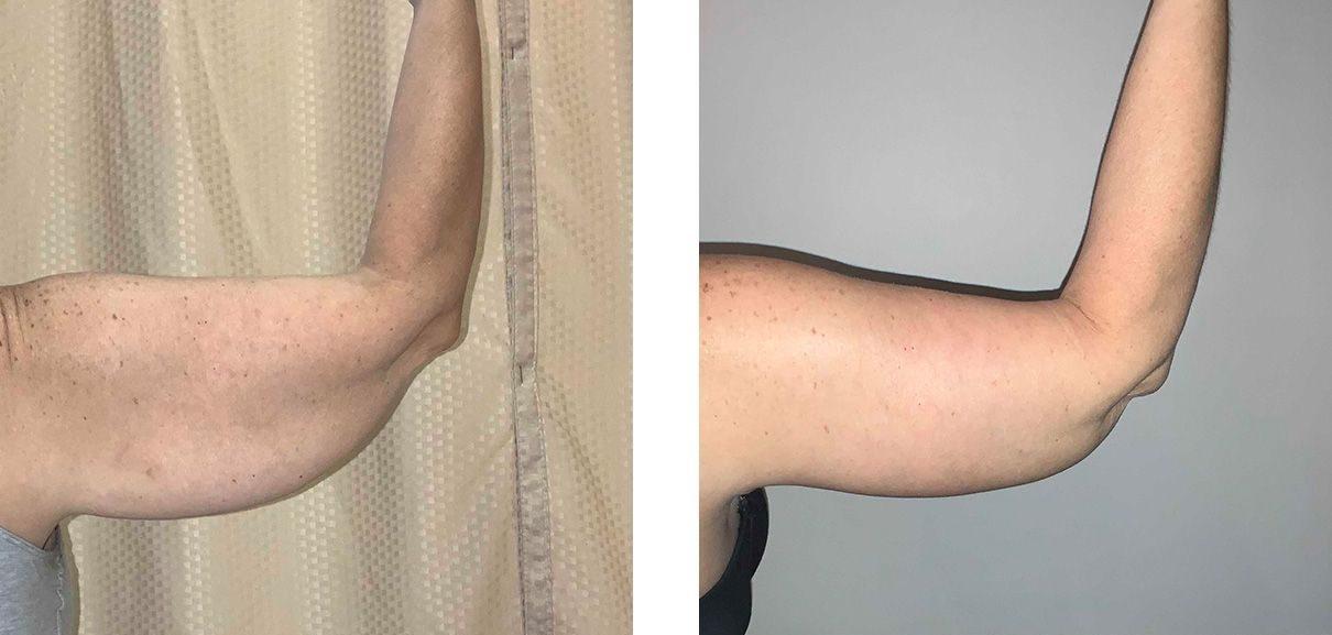 Cosmetic Surgery Tulsa | Brachioplasty - Patient 1 - Right Back