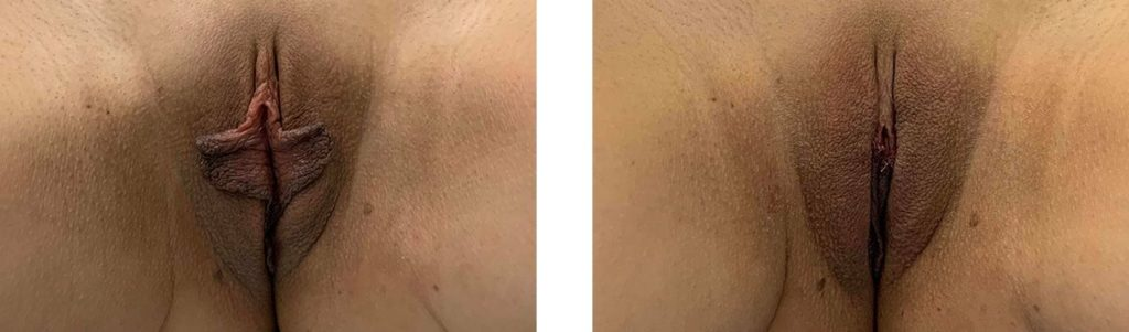 Cosmetic Surgery Tulsa | Labiaplasty - Patient 1 - 1