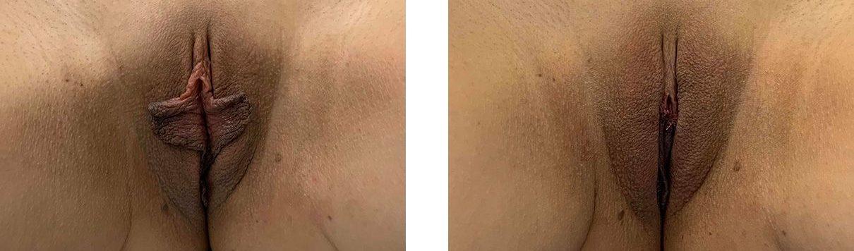 Cosmetic Surgery Tulsa | Labiaplasty - Patient 1