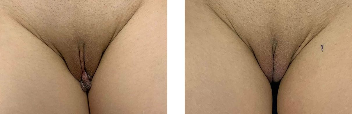 Cosmetic Surgery Tulsa | Labiaplasty - Patient 1 - 2