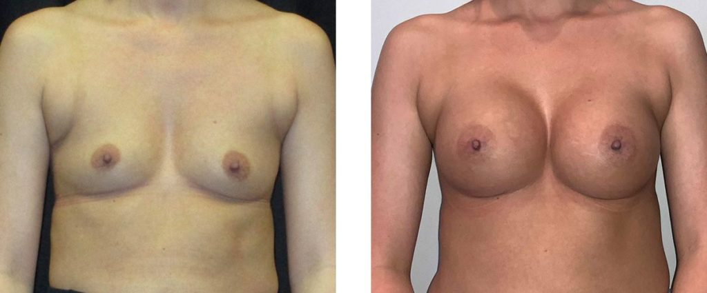 Cosmetic Surgery Tulsa | Breast Augmentation - Patient 6 - Front