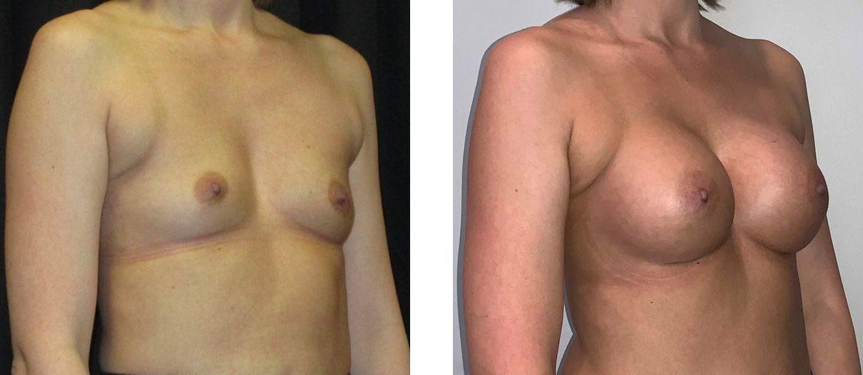 Cosmetic Surgery Tulsa | Breast Augmentation - Patient 6 - Oblique 1