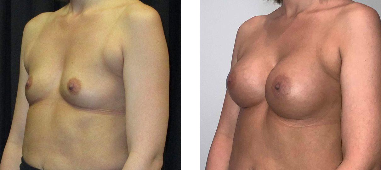 Cosmetic Surgery Tulsa | Breast Augmentation - Patient 6 - Oblique 2