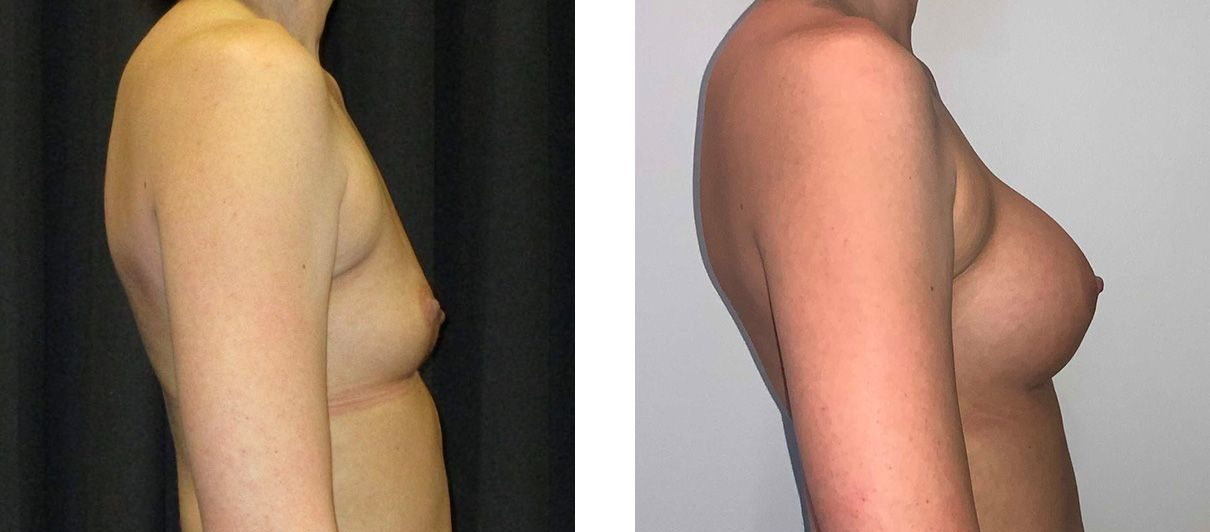Cosmetic Surgery Tulsa | Breast Augmentation - Patient 6 - Side 1