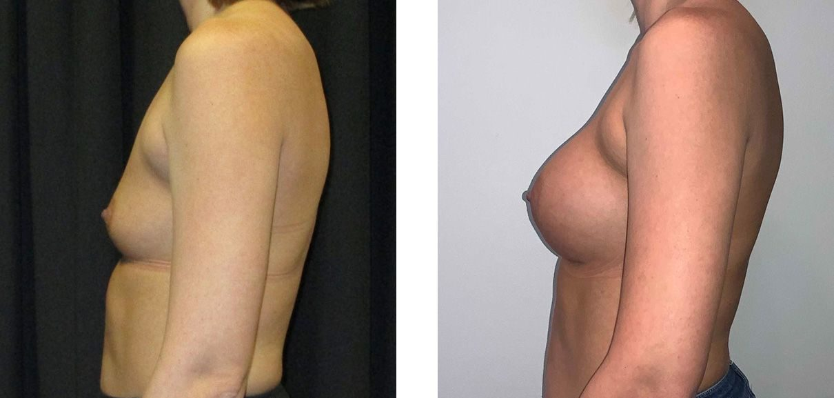 Cosmetic Surgery Tulsa | Breast Augmentation - Patient 6 - Side 2