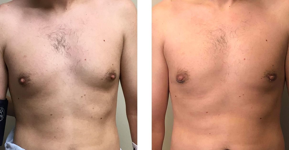 Cosmetic Surgery Tulsa | Gynecomastia - Patient 5 - Front