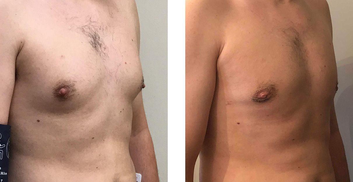 Cosmetic Surgery Tulsa   Gynecomastia - Patient 5 - Oblique 1
