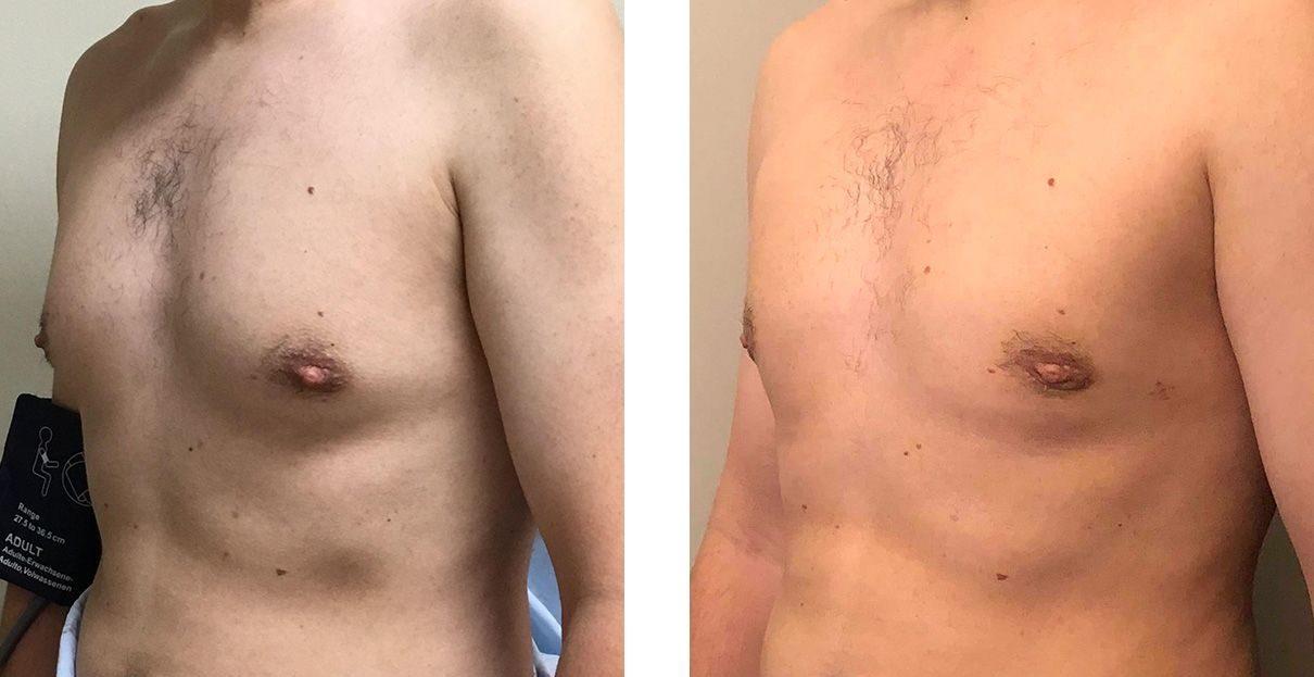 Cosmetic Surgery Tulsa   Gynecomastia - Patient 5 - Oblique 2