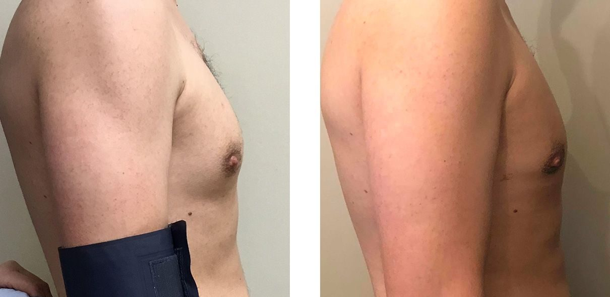 Cosmetic Surgery Tulsa   Gynecomastia - Patient 5 - Side 1