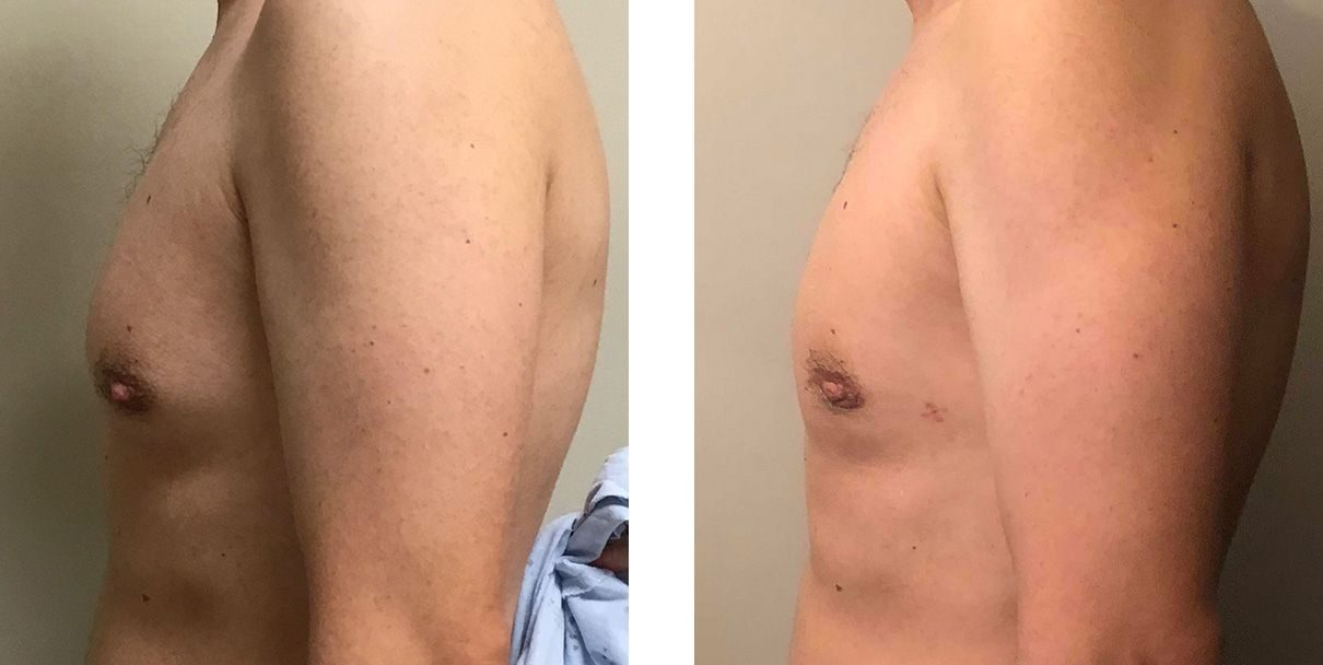 Cosmetic Surgery Tulsa   Gynecomastia - Patient 5 - Side 2