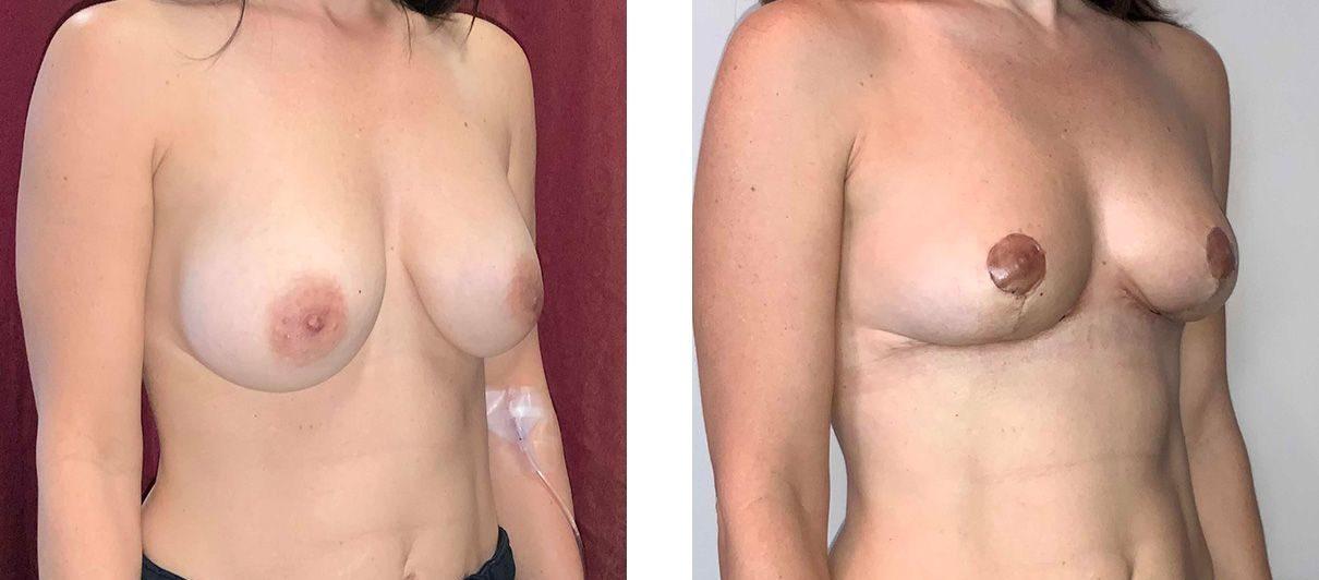 Cosmetic Surgery Tulsa | Explant - Patient 3 - Oblique 1