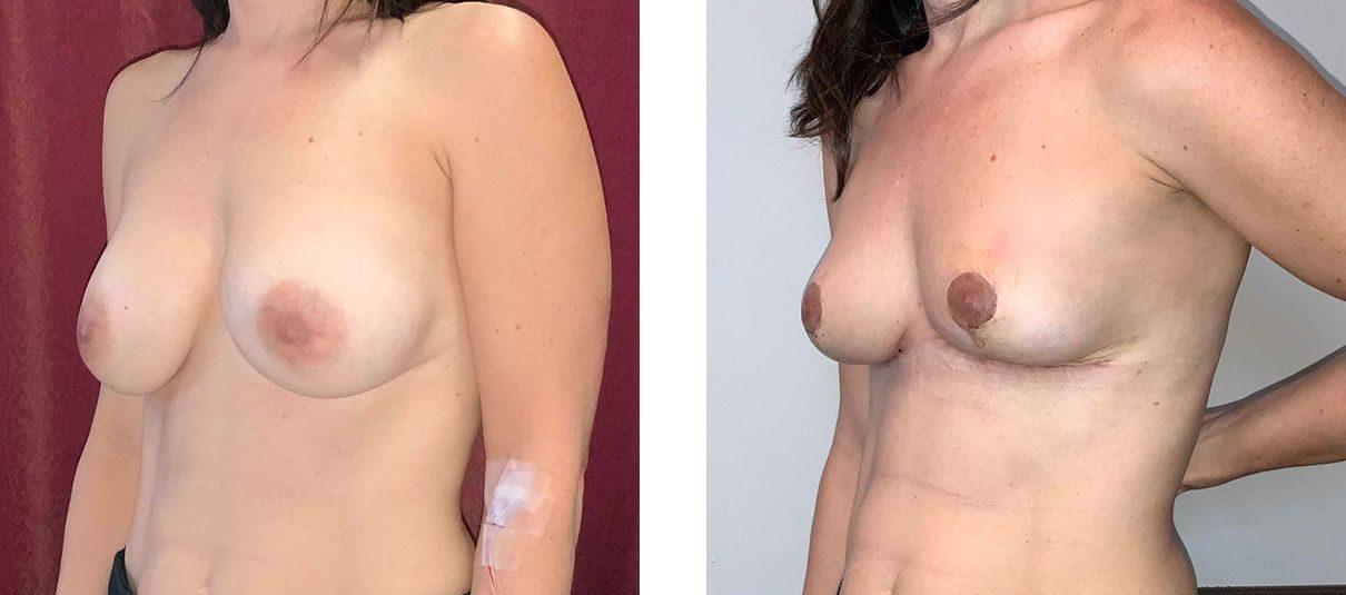 Cosmetic Surgery Tulsa | Explant - Patient 3 - Oblique 2