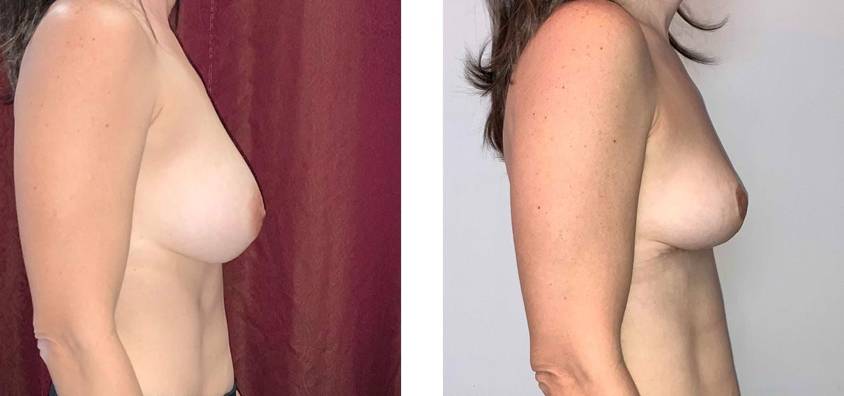 Cosmetic Surgery Tulsa | Explant - Patient 3 - Side 1