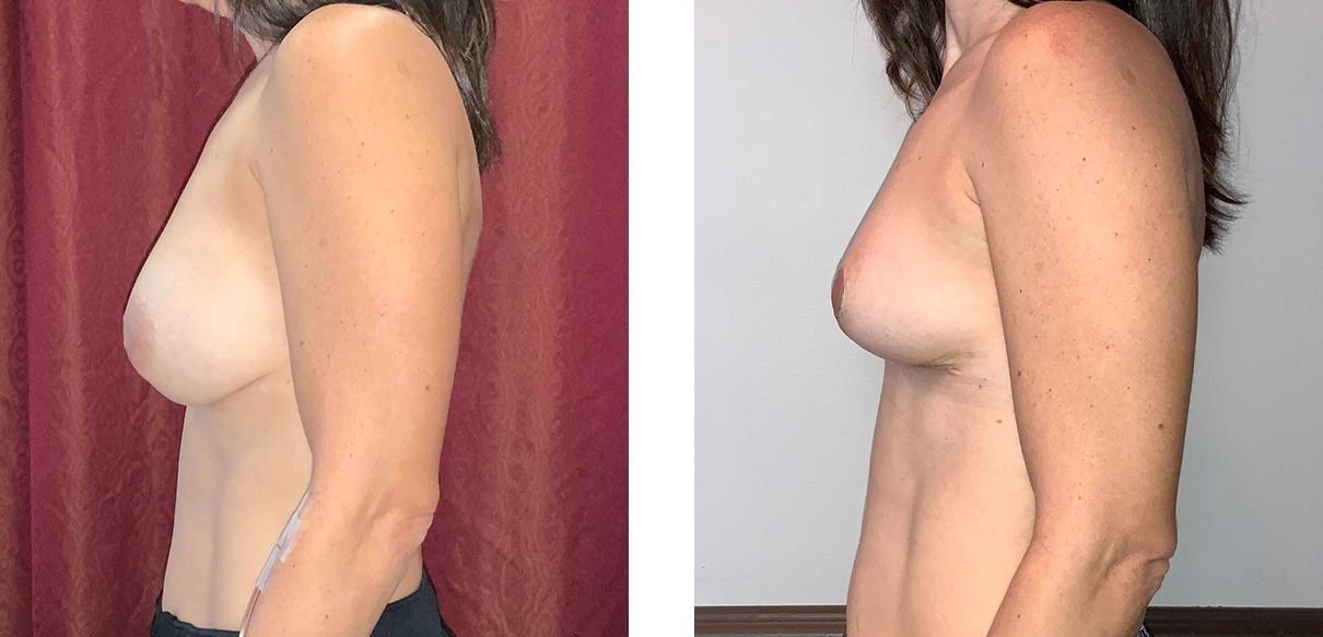 Cosmetic Surgery Tulsa | Explant - Patient 3 - Side 2