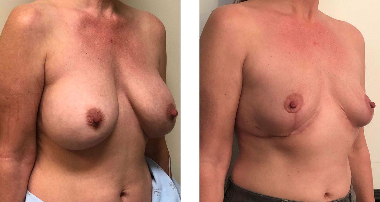 Cosmetic Surgery Tulsa | Explant - Patient 4 - Oblique 1
