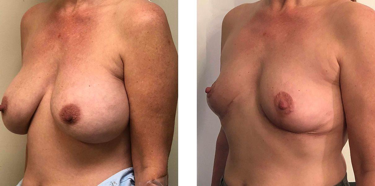 Cosmetic Surgery Tulsa | Explant - Patient 4 - Oblique 2