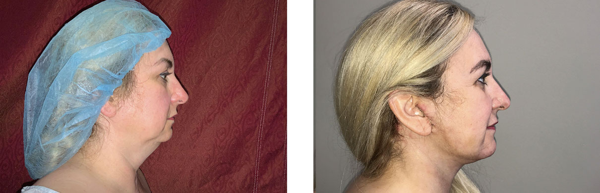 Cosmetic Surgery Tulsa | Liposuction - Patient 1 - Side 1