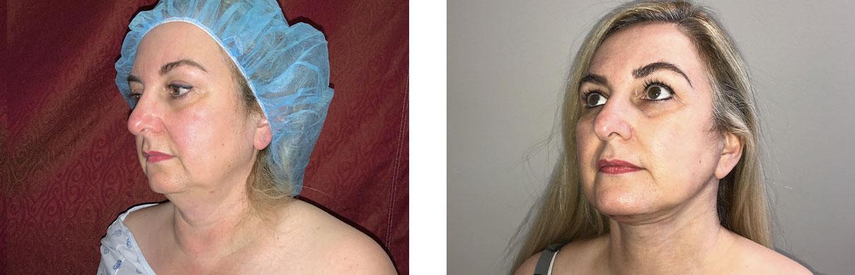 Cosmetic Surgery Tulsa | Liposuction - Patient 1 - Oblique 2