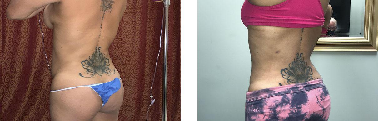 Cosmetic Surgery Tulsa | Liposuction - Patient 1 - Back Oblique 2