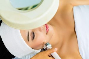 Tulsa Cosmetic Surgery Photofacials 1