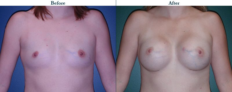 Tulsa Cosmetic Surgery Whitlock Breast Augmentation Before After Web10