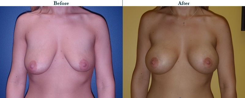 Tulsa Cosmetic Surgery Whitlock Breast Augmentation Before After Web11