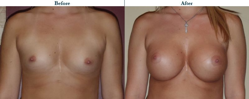 Tulsa Cosmetic Surgery Whitlock Breast Augmentation Before After Web12