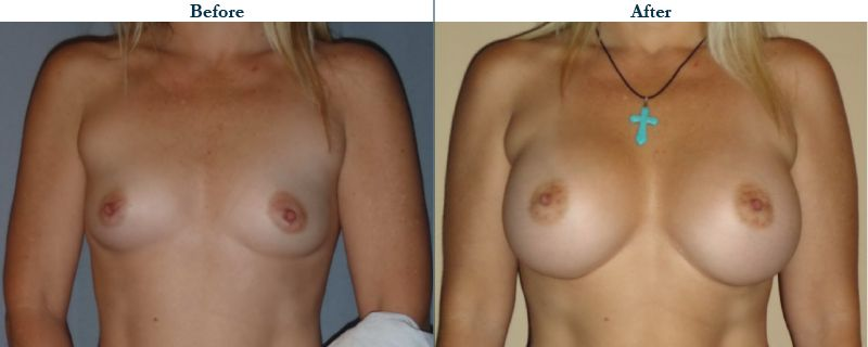 Tulsa Cosmetic Surgery Whitlock Breast Augmentation Before After Web13
