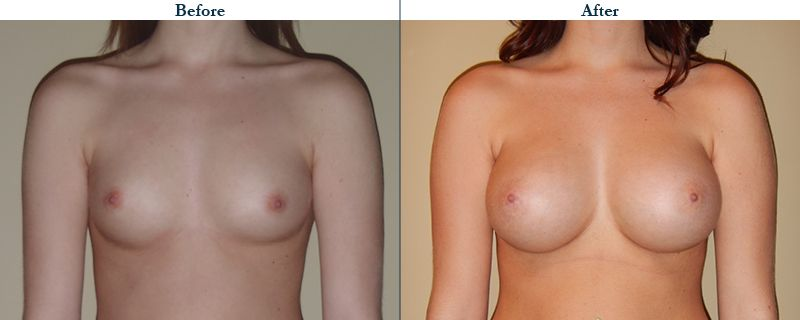 Tulsa Cosmetic Surgery Whitlock Breast Augmentation Before After Web15