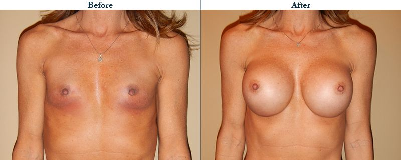 Tulsa Cosmetic Surgery Whitlock Breast Augmentation Before After Web17