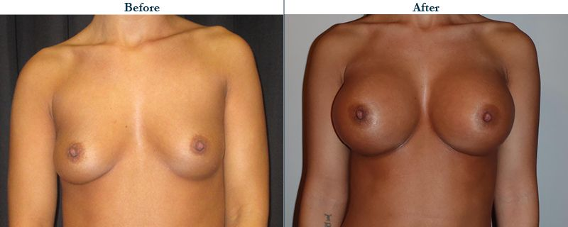 Tulsa Cosmetic Surgery Whitlock Breast Augmentation Before After Web19