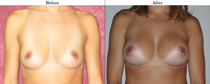 Tulsa Cosmetic Surgery Whitlock Breast Augmentation Before After Web20