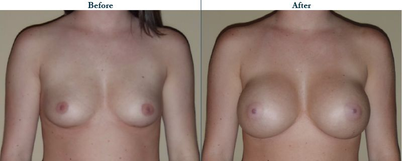 Tulsa Cosmetic Surgery Whitlock Breast Augmentation Before After Web21