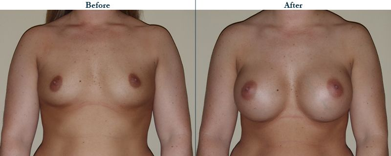 Tulsa Cosmetic Surgery Whitlock Breast Augmentation Before After Web3