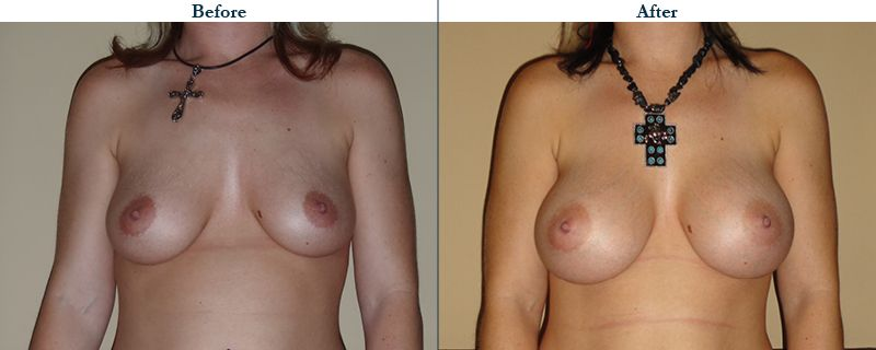 Tulsa Cosmetic Surgery Whitlock Breast Augmentation Before After Web4