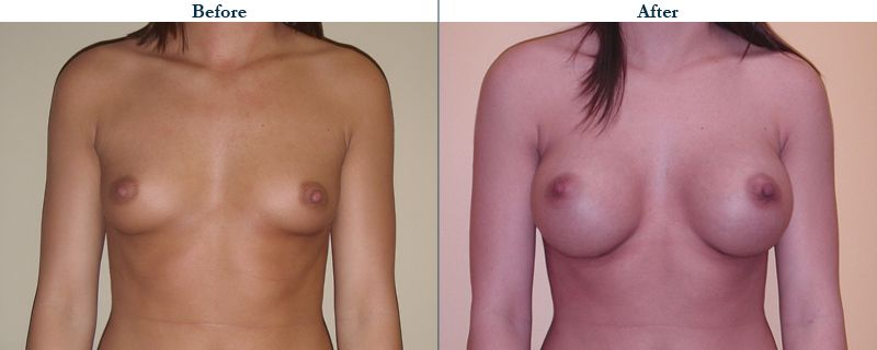 Tulsa Cosmetic Surgery Whitlock Breast Augmentation Before After Web5