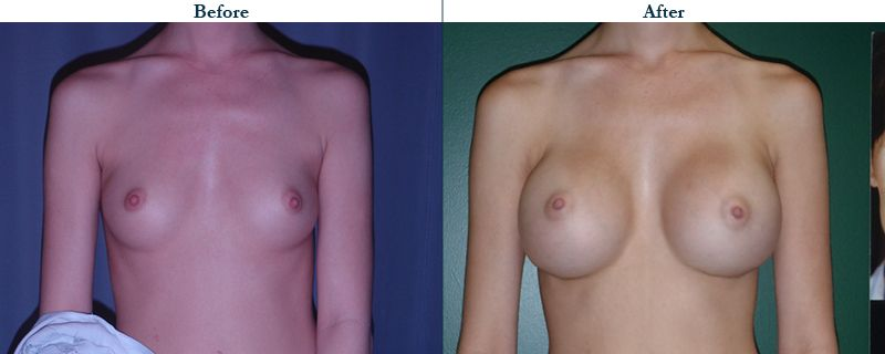 Tulsa Cosmetic Surgery Whitlock Breast Augmentation Before After Web6