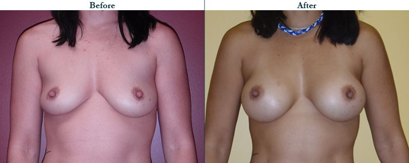 Tulsa Cosmetic Surgery Whitlock Breast Augmentation Before After Web7