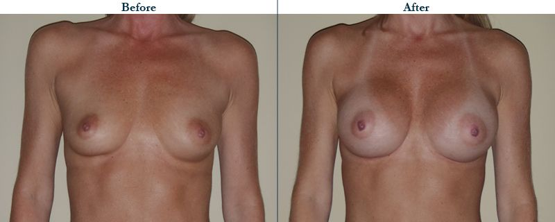Tulsa Cosmetic Surgery Whitlock Breast Augmentation Before After Web8