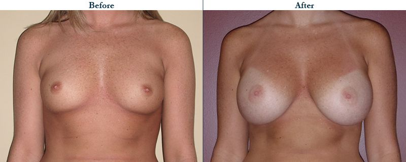 Tulsa Cosmetic Surgery Whitlock Breast Augmentation Before After Web9