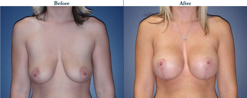 Tulsa Cosmetic Surgery Whitlock Breast Lift Before After Web23