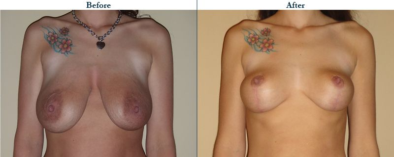 Tulsa Cosmetic Surgery Whitlock Breast Lift Before After Web24