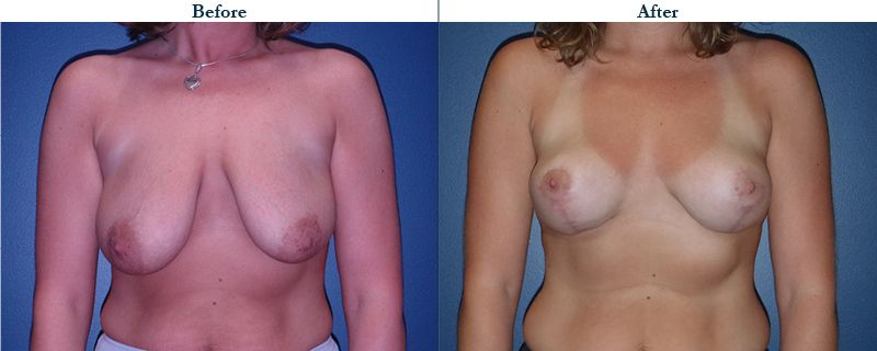 Tulsa Cosmetic Surgery Whitlock Breast Lift Before After Web25