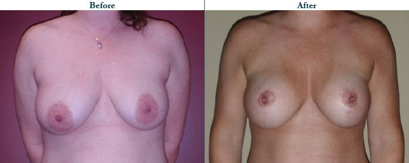 Tulsa Cosmetic Surgery Whitlock Breast Lift Before After Web29
