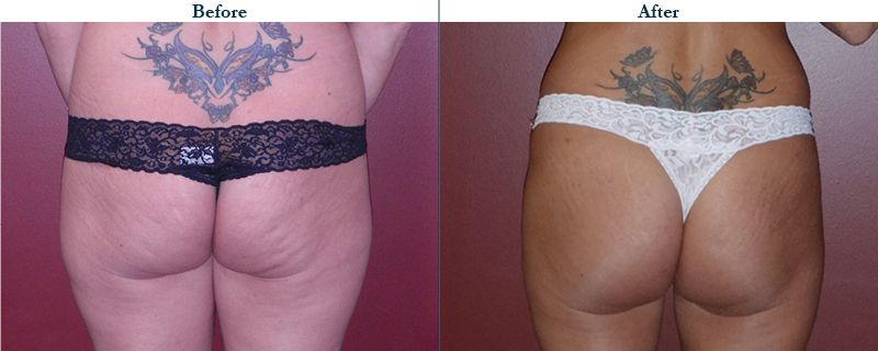 Tulsa Cosmetic Surgery Whitlock Butt Lift Before After Web31
